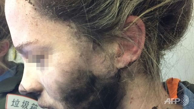 Headphone batteries explode on flight to Australia